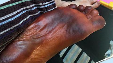 His foot turned black overnight and his wife was to blame