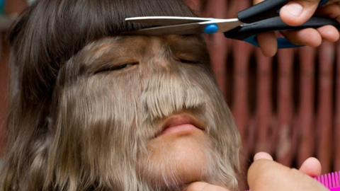 This is what the 'world's hairiest girl' looks like now