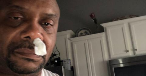 Doctors were shocked to see what was really dripping from this man's nose
