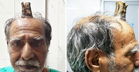 This Man Had A 4-Inch 'Devil Horn' Growing Out Of His Head