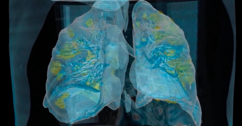 COVID: 3D video of how the coronavirus affects the lungs