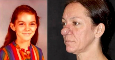 This Woman's Nose Had Not Stopped Growing For Almost 50 Years, Today She Looks Totally Different